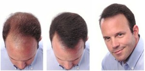 vitamin-d-hair-loss-success-growth-hair-for-retin-and-a-minoxidil-charlotte-north-carolina-17514